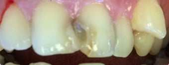 45-54 year old woman treated with Dental Crown before 3379423