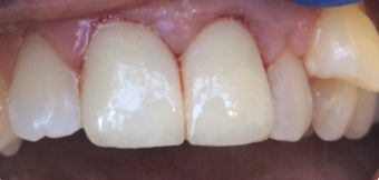 45-54 year old woman treated with Dental Crown after 3379423