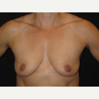 35-44 year old woman treated with Breast Implants before 1736488