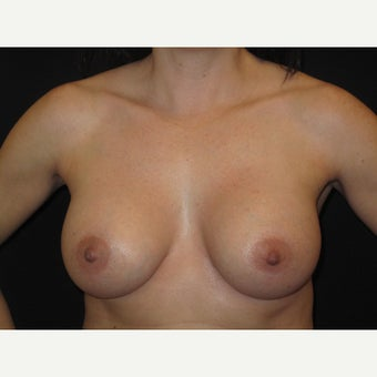 35-44 year old woman treated with Breast Implants after 1736488
