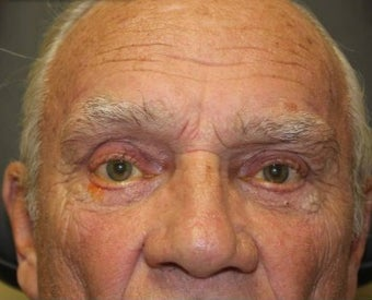 65-74 year old man treated with Eyelid Surgery after 3286101