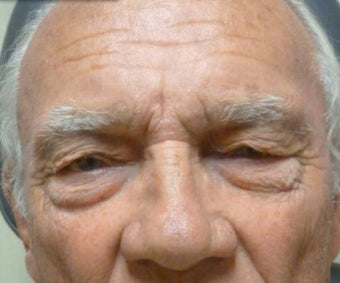 65-74 year old man treated with Eyelid Surgery before 3286101