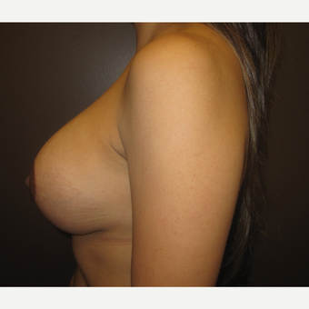 35-44 year old woman treated with Breast Implants after 3418082