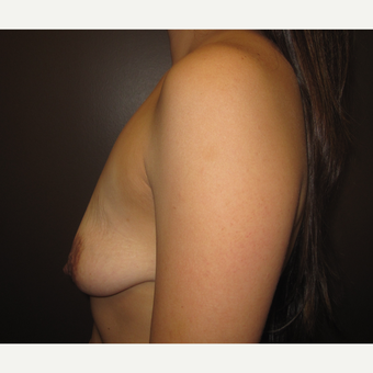 35-44 year old woman treated with Breast Implants before 3418082