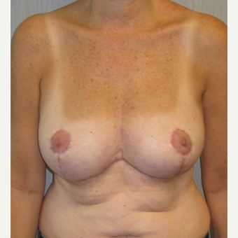 45-54 year old woman treated with Breast Reduction after 3378165