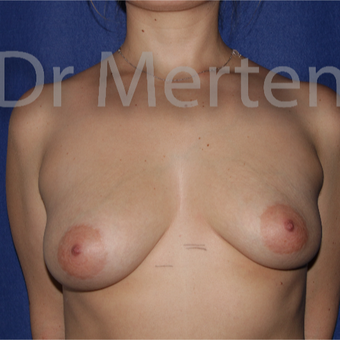 25-34 year old woman treated with Breast Lift with Implants before 3631799