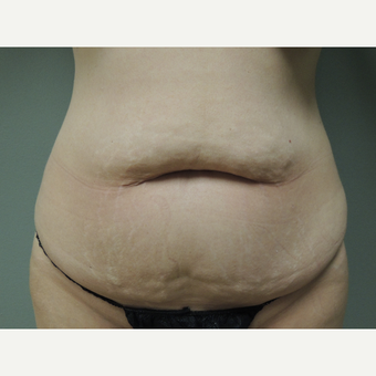 35-44 year old woman treated with Tummy Tuck before 3710700