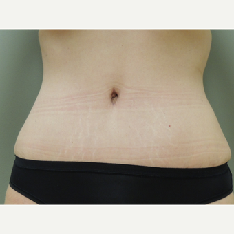 35-44 year old woman treated with Tummy Tuck after 3710700