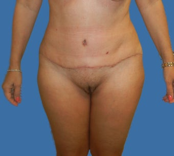 Tummy Tuck  after 1144240