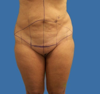 Tummy Tuck  before 1144240