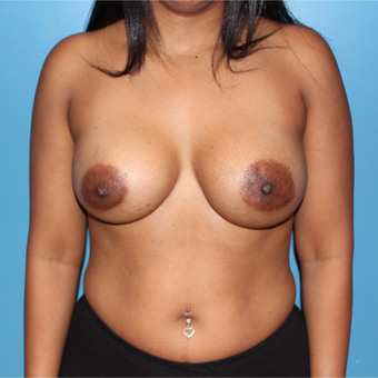 35-44 year old woman treated with Breast Implant Revision after 3806169