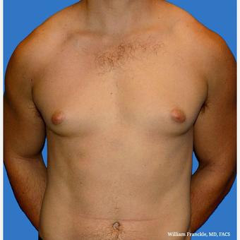Male Breast Reduction before 3603496