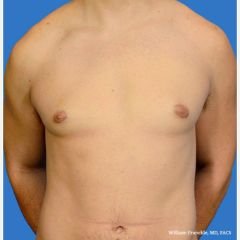 Male Breast Reduction after 3603496