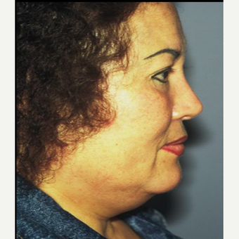 45-54 year old woman treated with Facelift before 3710276
