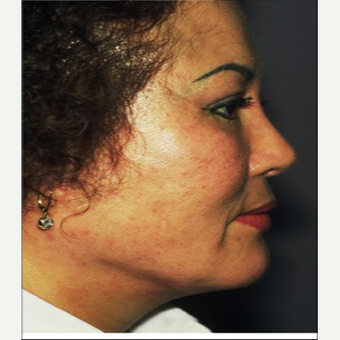 45-54 year old woman treated with Facelift after 3710276