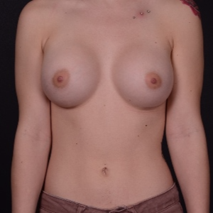 18-24 year old woman treated with Breast Augmentation after 3737537
