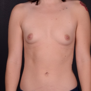 18-24 year old woman treated with Breast Augmentation before 3737537