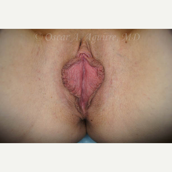 31 yo female had Labiaplasty of Labia Minora and Clitoral Hood Reduction with Clitoropexy before 3004190