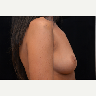 25-34 year old woman treated with Breast Augmentation before 3265257