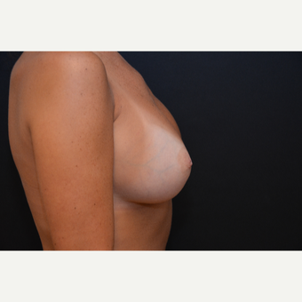 25-34 year old woman treated with Breast Augmentation after 3265257