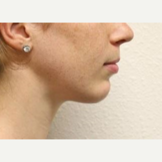 18-24 year old woman treated with Chin Implant after 2990679