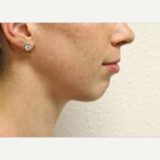 18-24 year old woman treated with Chin Implant before 2990679