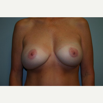 Breast Augmentation after 3560411