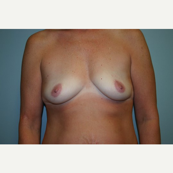Breast Augmentation before 3560411