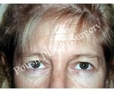 Forehead Lift before 921876