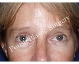 Forehead Lift after 921876