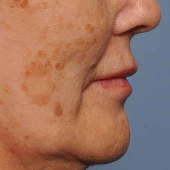 55-64 year old woman treated with Laser Resurfacing before 3030490