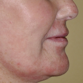 55-64 year old woman treated with Laser Resurfacing after 3030490