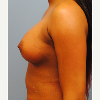 25-34 year old woman treated with Breast Augmentation after 3061445