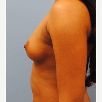 25-34 year old woman treated with Breast Augmentation before 3061445