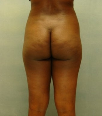 Liposuction before 221304