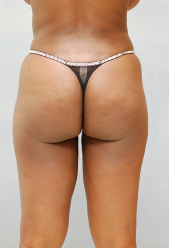 Liposuction after 221304