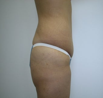 Abdominoplasty after 531866