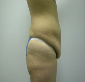 Abdominoplasty before 531866