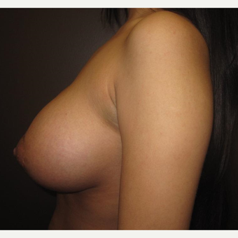 18-24 year old woman treated with Breast Implants after 3418039