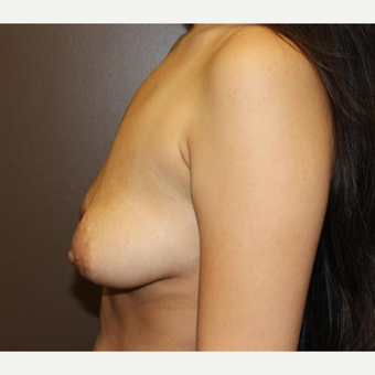 18-24 year old woman treated with Breast Implants before 3418039