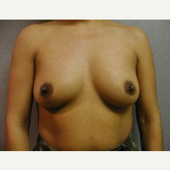 25-34 year old woman treated with Breast Implants before 3107927