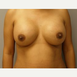 25-34 year old woman treated with Breast Implants after 3107927