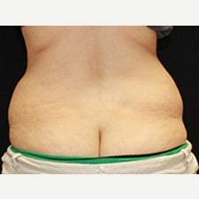 CoolSculpting before 1858714
