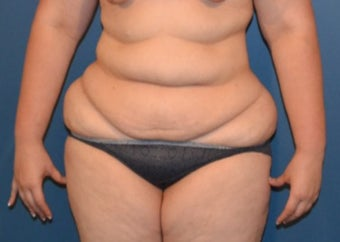 35-44 year old woman treated with Tummy Tuck before 3408374