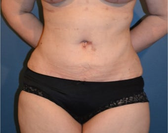 35-44 year old woman treated with Tummy Tuck after 3408374