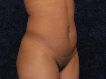 Abdominoplasty and Liposuction to Hips 322001