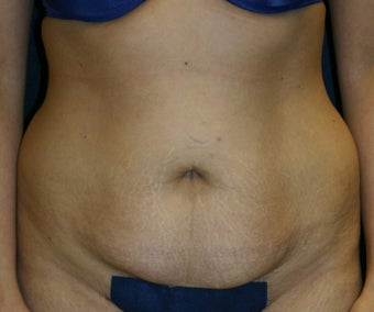 Tummy Tuck with Liposuction to Flanks before 1321331