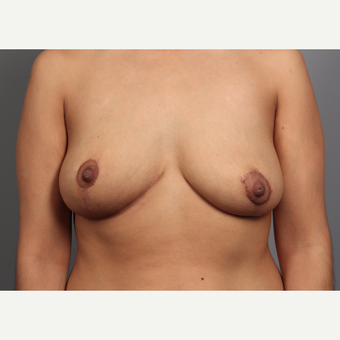 35-44 year old woman treated with Breast Lift and Breast Mass Removal after 3412122