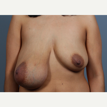 35-44 year old woman treated with Breast Lift and Breast Mass Removal before 3412122