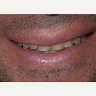 We brightened and enhanced his smile with six veneers. before 3448313